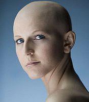 А волосы у женщин частенько выпадают от частых окрашиваний, сушки феном, укладки, или от пребывания на солнце с